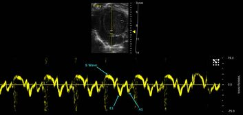 Mitral Tissue Doppler