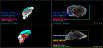 Screenshot of mouse brain atlas