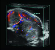 Pancreatic Tumor Color Doppler 3D