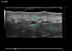 High Resolution Ultrasound Dermal Imaging