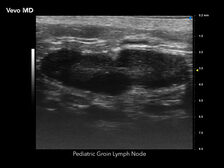 Pediatric Lymph Node