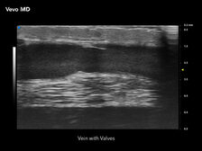 Vein with Valves