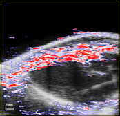 cardiovascular imaging - B mode ultrasound