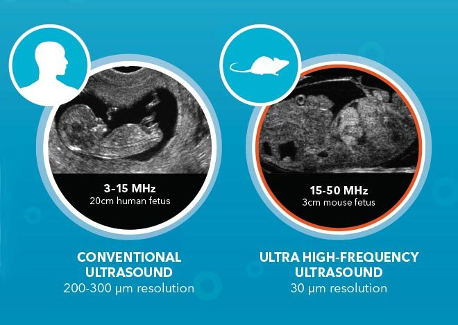 Conventional ultrasound compared with ultra high frequency ultrasound