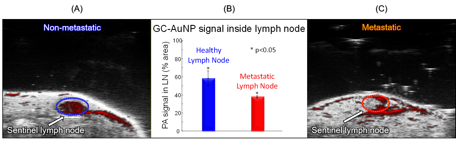 GC-AuNR signal inside lymph node