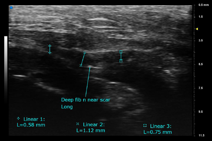 Facilitates delineation and measurement of small changes - fibular nerve-cropped