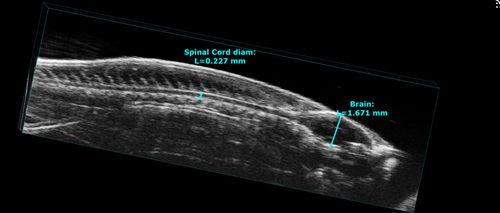 Imaging Zebrafish with High Frequency Ultrasound | FUJIFILM