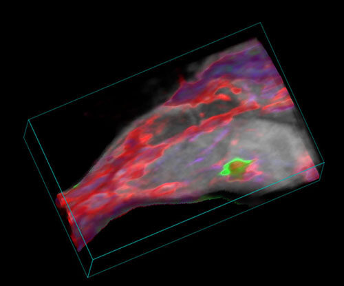 Molecular imaging - photoacoustic image of the mouse hind