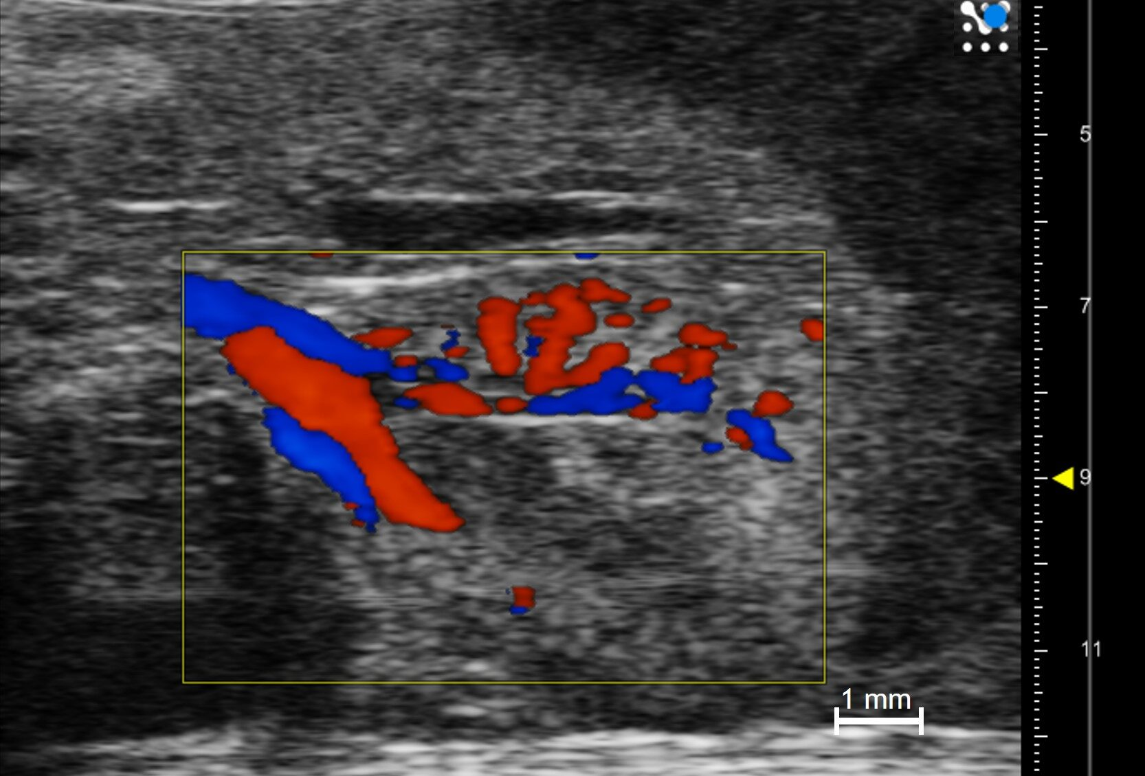 Renal function monitoring - Renal Vasculature with Color Doppler in a Mouse